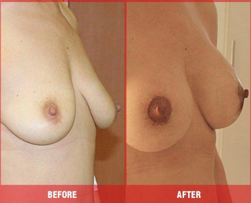Dikleştirilmiş Göğüs Fotoğrafı