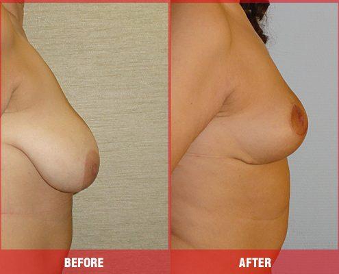 Göğüs Dikleştirme Operasyonu