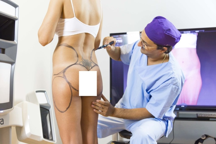 Liposuction ameliyatı
